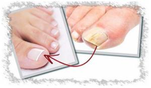 ¿Cómo Fresh Fingers elimina los hongos de los pies?